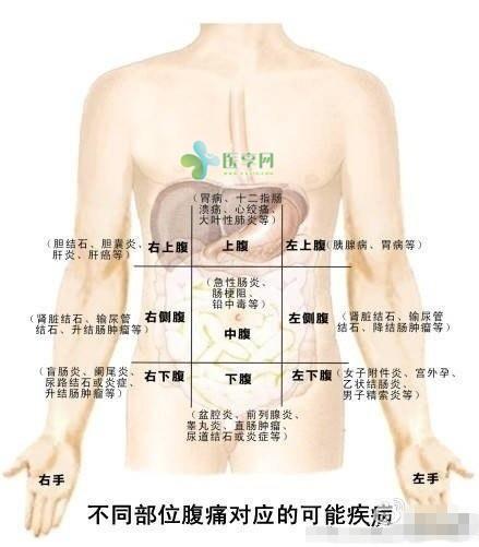 一张图看懂肚子痛的各种可能